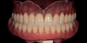 съемное протезирование (2)